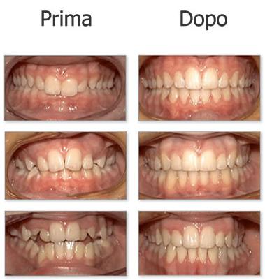 ortodonzia - dott.tangorra